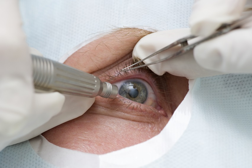 Treatment of an eye by ultrasound