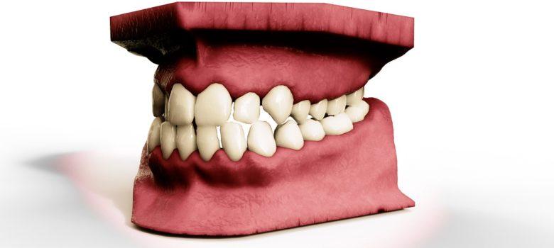 teeth-2833424_1280