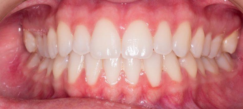 teeth-2339168_960_720